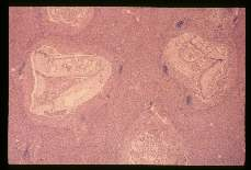 Clonorchis sinensis. Liver, the parasites are seen in the biliary passages where they have caused considerable fibrosis. The parasite at the right is sectioned through the anterior sucker.