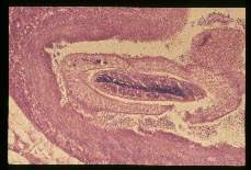 Schistosoma mansoni. Adults in a mesenteric vein shown at greater magnification.