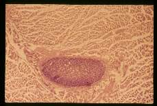 Sarcocystis. The parasite appears as a flattened purplish red oval which is divided into separate chambers by septae.