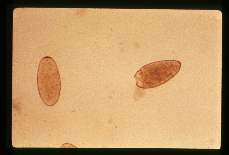 Fasciola hepatica Egg in stool. Note that the operculum on one has separated from the remainder of the egg shell.