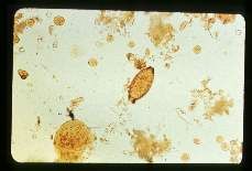 Trichuris trichiura Egg i n stool, iodine stained.
