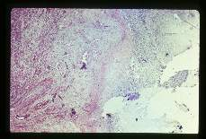Balantidium coli. Low and high powered views of trophozoites within inflamed appendix. H&E stain.
