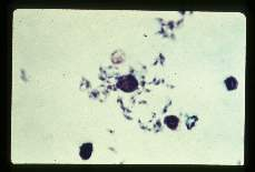 Toxoplasma gondii Motile forms from mouse peritoneum.