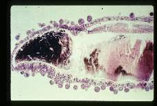 Plasmodium Oocysts on wall of mosquito stomach. The spherical objects peripheral to the stomach wall are the oocysts within which Sporozoites are formed.