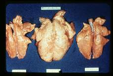 Ascaris. Mouse lungs showing the cumulative effect of simultaneous infection with ascarids and a pneumonic virus. The laterally placed lungs have been subjected to either Ascaris or virus. The central lung suffered both infections.