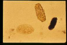 Ascaris lumbricoides. Infertile egg, mamillated but distorted, being more elongate and rectangular than normal.
