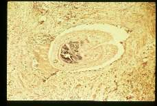 Schistosoma haematobium Adults and eggs in human testicle.