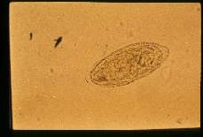 Schistosoma mansoni. Egg in stool with lateral spine hidden beneath egg mass.
