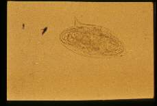 Schistosoma mansoni. Same egg moved so that lateral spine is visible.