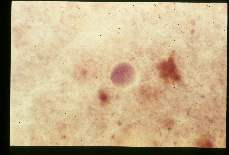 Entamoeba coil. Cysts in stool, showing various numbers of nuclei, hematoxylin stain.