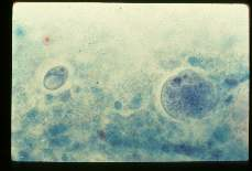 Multiple infections. Entamoeba coli and Iodamoeba butschlii. Cysts in stool. Trichrome stain.