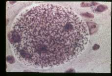 Toxoplasma gondii Hematoxylin-eosin stained cyst in mouse brain.