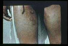 Leishmania. Lesions of thighs. Brazil.