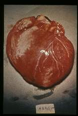 Trypanosoma cruzi. Gross pathology. Unopened heart showing myocarditis in Chagas' disease.