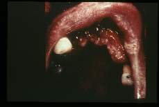 Leishmania. (Brazil) Erosion of oral structures.