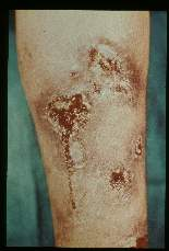 Leishmania. (South America) Chronic skin infection.
