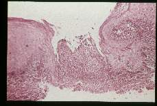 Leishmania. Hematoxylin-eosin stained section showing ulceration. South America.