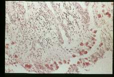 Entamoeba histolytica Best carmine stained section of rectum.