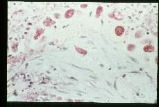 Entamoeba histolytica. Best carmine stained section of rectum with suggestion of vessel invasion.