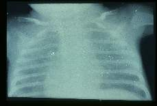Pneumocystis carinii. X-ray of child with pneumonia showing the characteristic ground glass appearance of such lungs.