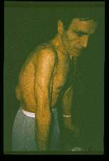 Echinococcus granulosus. Same man in lateral position showing kyphosis due to compression of vertebral bodies eroded by the cysts. In addition note elevation of the left flank caused by an underlying cyst.