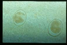 Ascaris lumbricoides. Eggs from liver abscess.