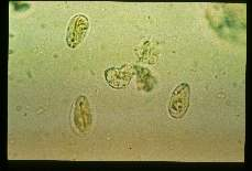 Giardia lamblia. Cysts in feces. Iodine stained wet mount.