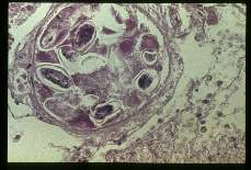 Enterobius vermicularis. Cross section through uterus containing many typical plani-convex ova.