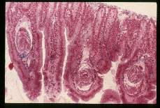 Hymenolepis nana. Cysticercoids in villi of a mouse.
