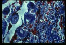 Balantidium coli Costa Rica. This slide shows invasion of colon wall with associated hemorrhage. Red blood cells appear red with this Mallory trichrome stain.