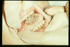 Dermatobiahominis Rare case of myiasis of the tongue