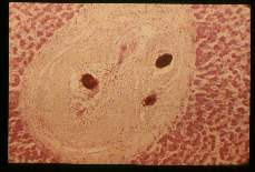 Schistosoma japonicum. Liver with fibrotic nodule containing calcified egg.