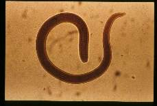 Trichinella spiralis. 27 hours after oral infection (female).