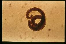 Trichinella spiralis. 34 hours after oral infection (male).
