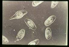 Trichinella spiralis. Isolated nurse cells with larvae.