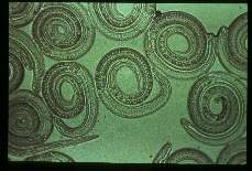 Trichinella spiralis. Muscle larvae. Isolated by pepsin digestion.