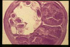 Trichuris. Cross section through an adult with many eggs.