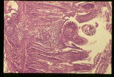 Echinostoma. Adult parasite in the bowel wall.