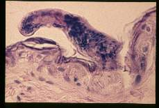Schistosoma. Cercaria penetrating skin of the abdomen and going deep.