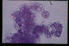 Entamoeba histolytica MIF stained trophozoites from a carrier.