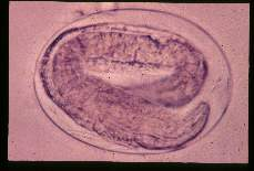 Strongyloides stercoralis. Egg showing larva.