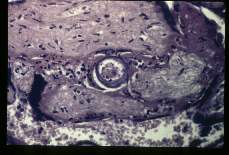 Schistosoma mansoni. Schistosoma placentitis. An egg is present in the villi. Note disappearance of the trophoplastic epithelium.