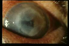 Acanthamoeba polyphagia Progressive keratitis in 59 year old male rancher. Slide 1489 dated 2-16-73, slide 1490 12-19-73, and slide 1491 dated 1-9-74.