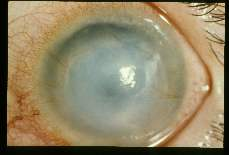 Acanthamoeba Keratitis in the eye of a different patient.