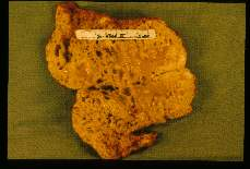 Echinococcus multilocularis. Portion of infected human liver.