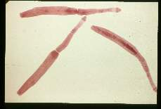 Echinococcus vogeli. Adult worms from dog.