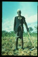 Wuchereria bancrofti. Tanzania. Elephantiasis of lower extremities. Old man continues working in corn field in spite of deformity.