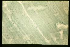 Trichinella spiralis. Xeroradiograph of bear muscle showing calcified cysts as small dense spots.