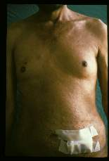 Sparganum proliferum Gross pictures of male patient showing multiple skin lesions which are mostly papular and nodular. Linear elevations suggest shape of the worm beneath the skin. Note gynecomastia.