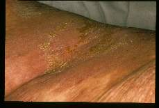 Sarcoptes scabiei. Severe skin lesions. 'Norwegian scabies'.